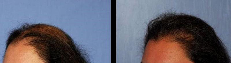 Risultati Trapianto di capelli FUT