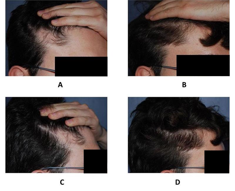 Risultati Trapianto di capelli estensori