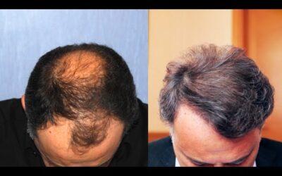 Risultati di trapianto di capelli: la testimonianza di Claudio