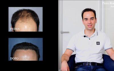 Risultati trapianto di capelli: la testimonianza di Federico