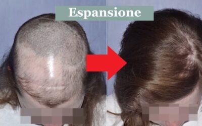 Cicatrici del cuoio capelluto ed alopecie: trapianto ed espansione cutanea