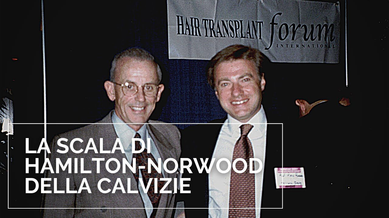 Scala di Hamilton-Norwood calvizie