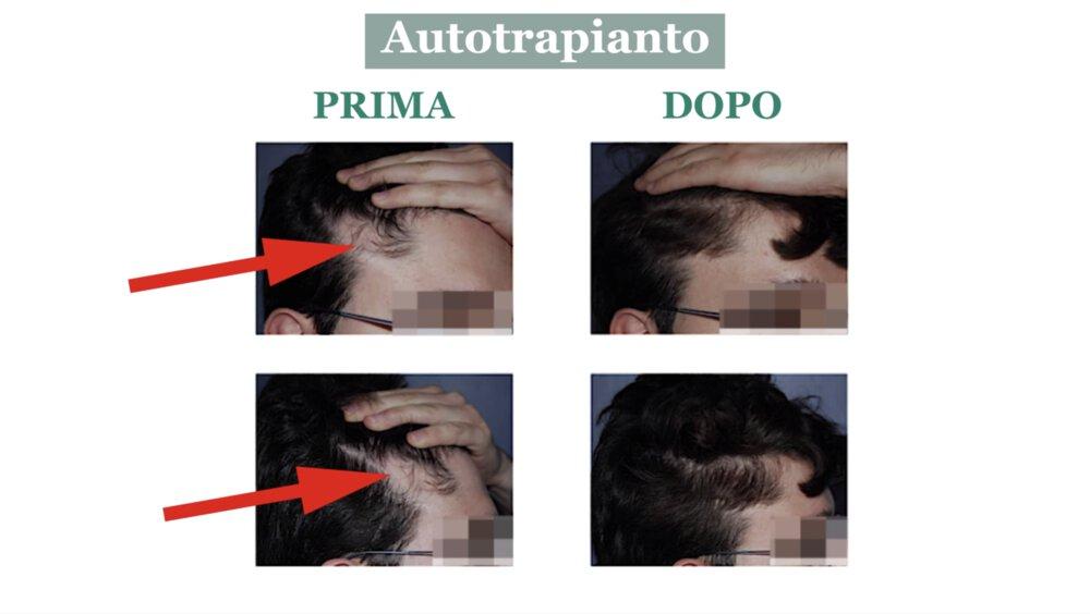 Alopecia cicatriziale: cura con autotrapianto di capelli - Caso 1
