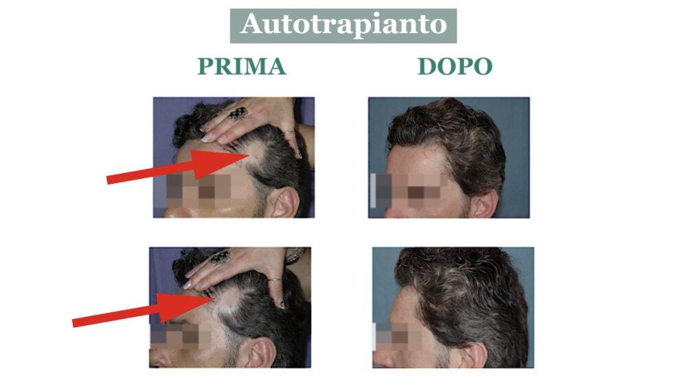 Alopecia cicatriziale: cura con autotrapianto di capelli - Caso 2