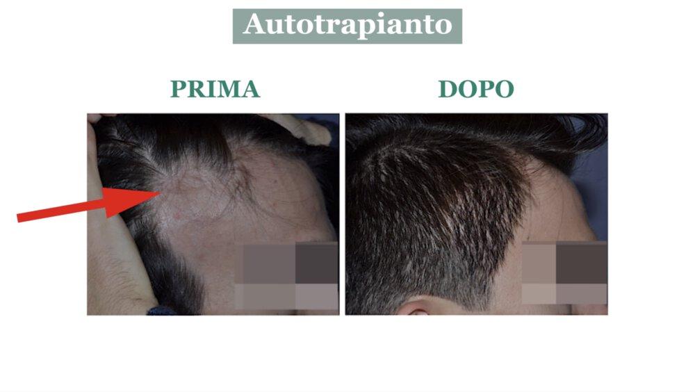 Alopecia cicatriziale: cura con autotrapianto di capelli - Caso 3