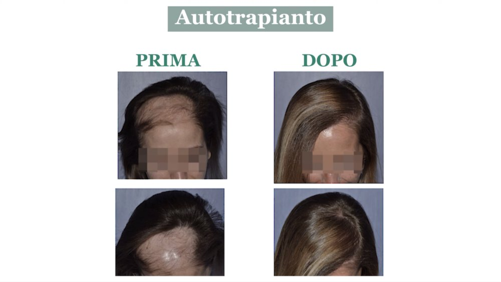 Alopecia cicatriziale: cura con autotrapianto di capelli - Caso 4