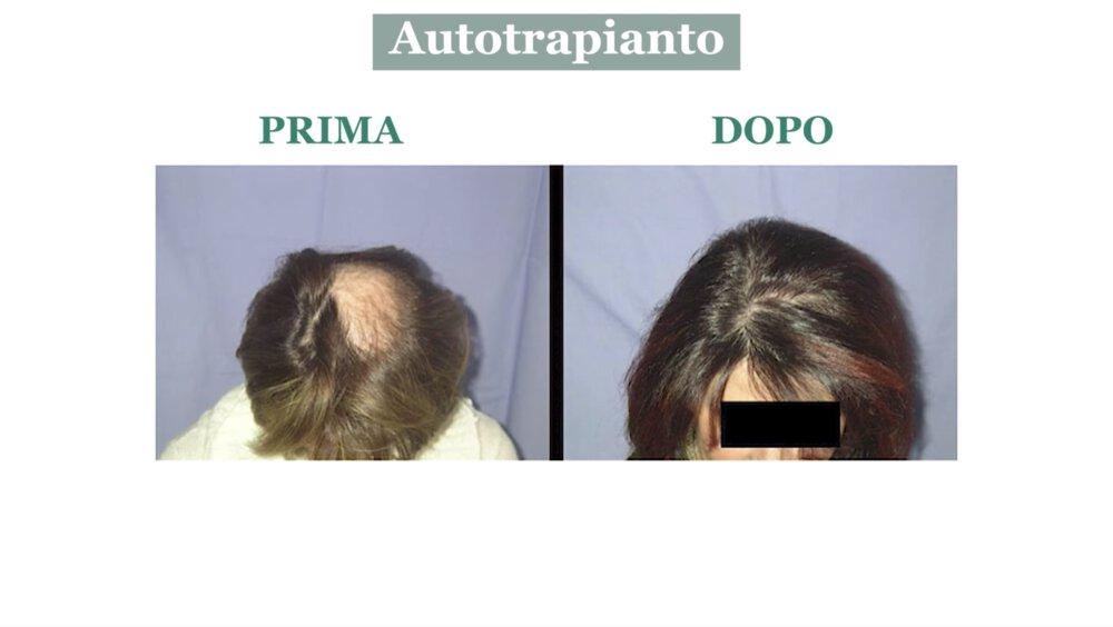 Alopecia cicatriziale: cura con autotrapianto di capelli - Caso 5
