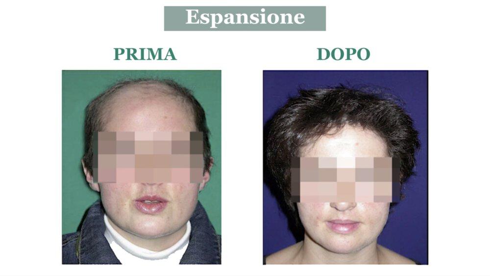 Alopecia cicatriziale: cura con espansione cutanea - Caso 3