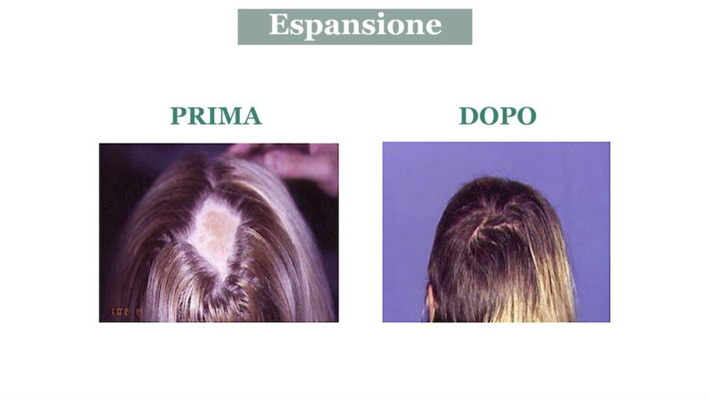 Alopecia cicatriziale: cura con espansione cutanea - Caso 4