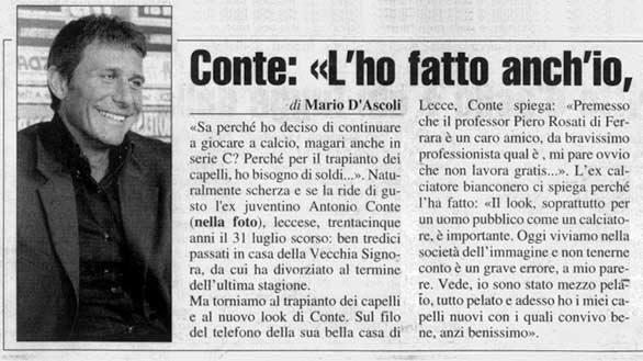 """Antonio Conte trapianto di capelli: """"L'ho fatto anch'io, quel chirurgo è un mago"""""""