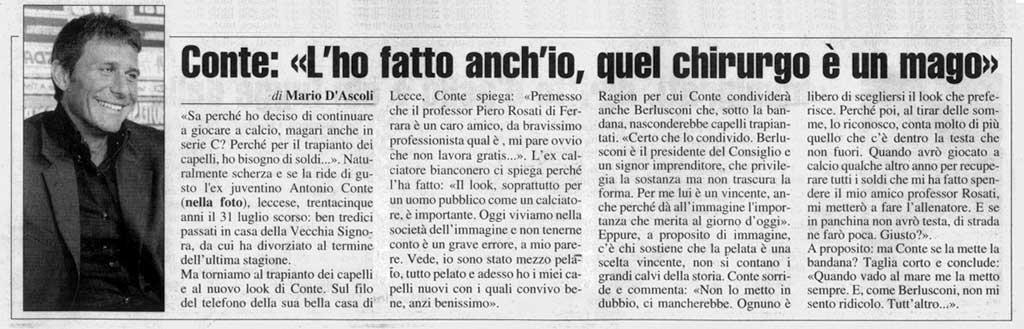 Articolo Antonio Conte trapianto di capelli