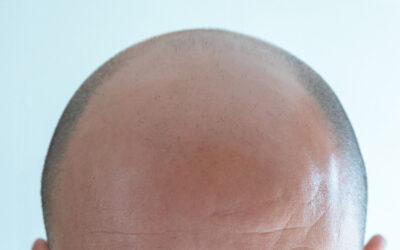 Il trapianto di capelli di mio marito