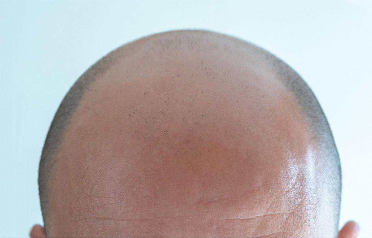 Calvizie androgenetica - caduta dei capelli