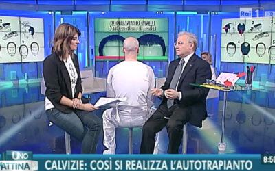 Chirurgia della calvizie e autotrapianto di capelli: l'intervista al prof. Piero Rosati sulla Rai