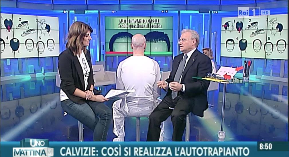 Chirurgia della calvizie e autotrapianto di capelli su Rai 1 - Intervista a Piero Rosati