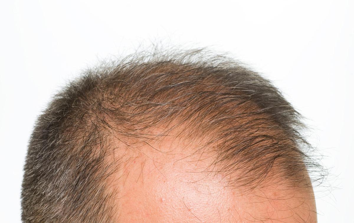 Come fermare la caduta dei capelli - rimedi
