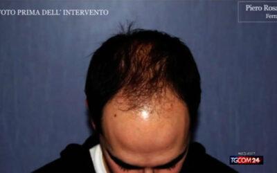 Intervista al TGCOM24 sul trapiando di capelli al Prof. Piero Rosati