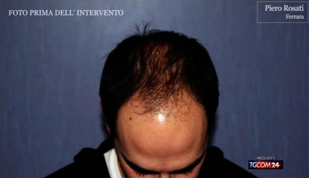 Intervista al TGCOM24 sul trapianto di capelli al Prof. Piero Rosati