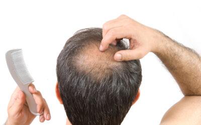Quanti capelli si perdono al giorno normalmente?