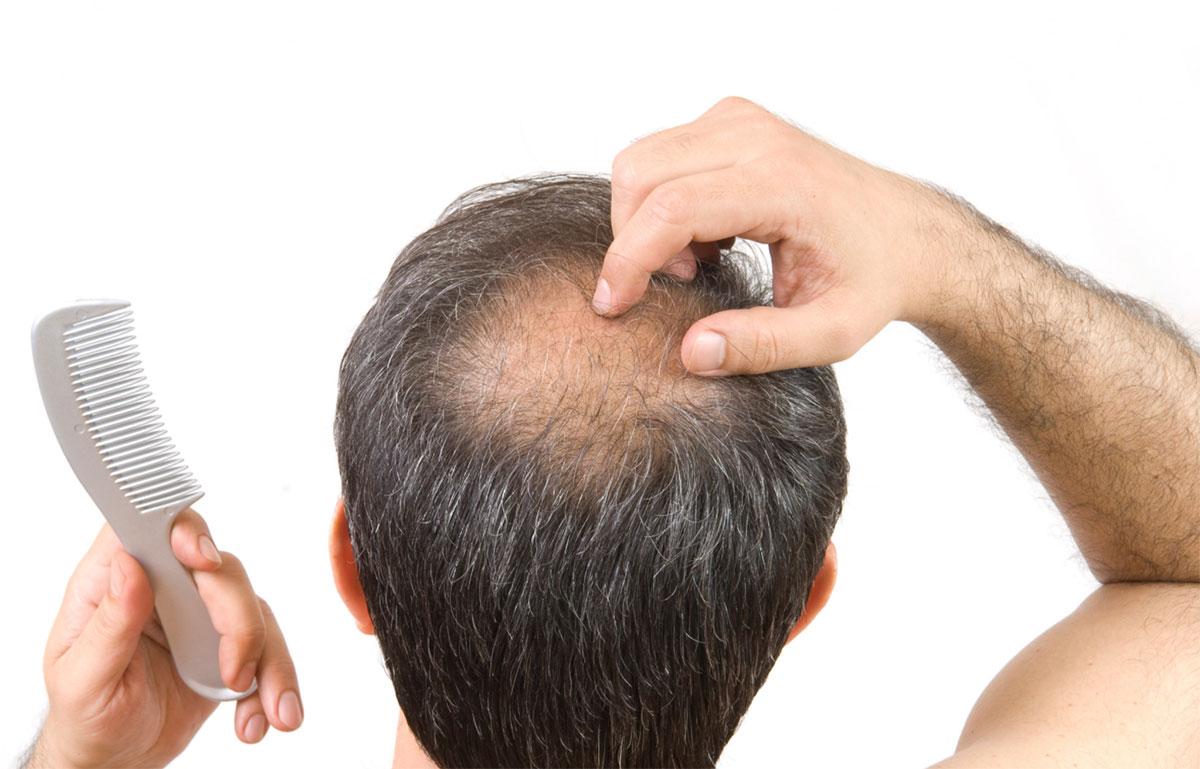 Quanti capelli si perdono al giorno