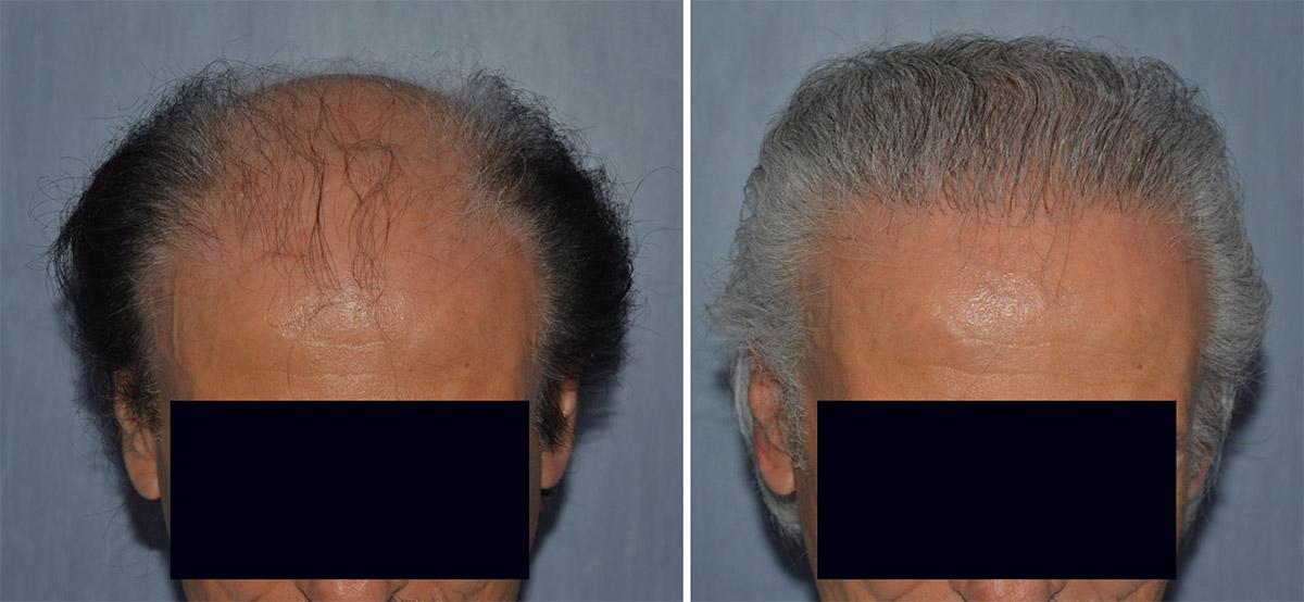 Risultati trapianto di capelli FUT 2021
