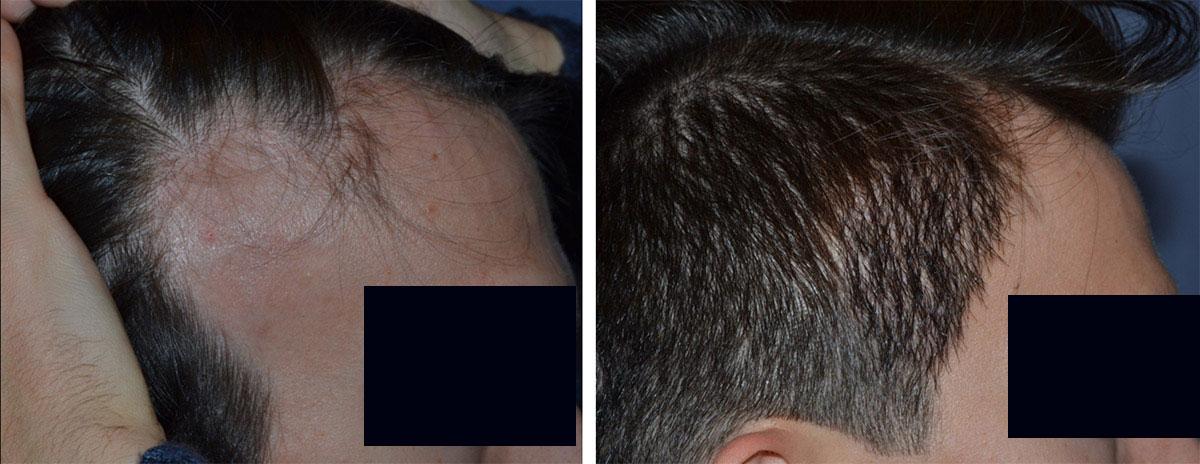 Trapianto di capelli per correzione cicatrici