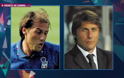Il trapianto di capelli di Antonio Conte e altri sportivi