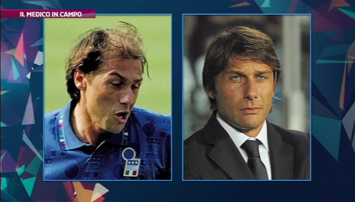 Trapianto di capelli Antonio Conte