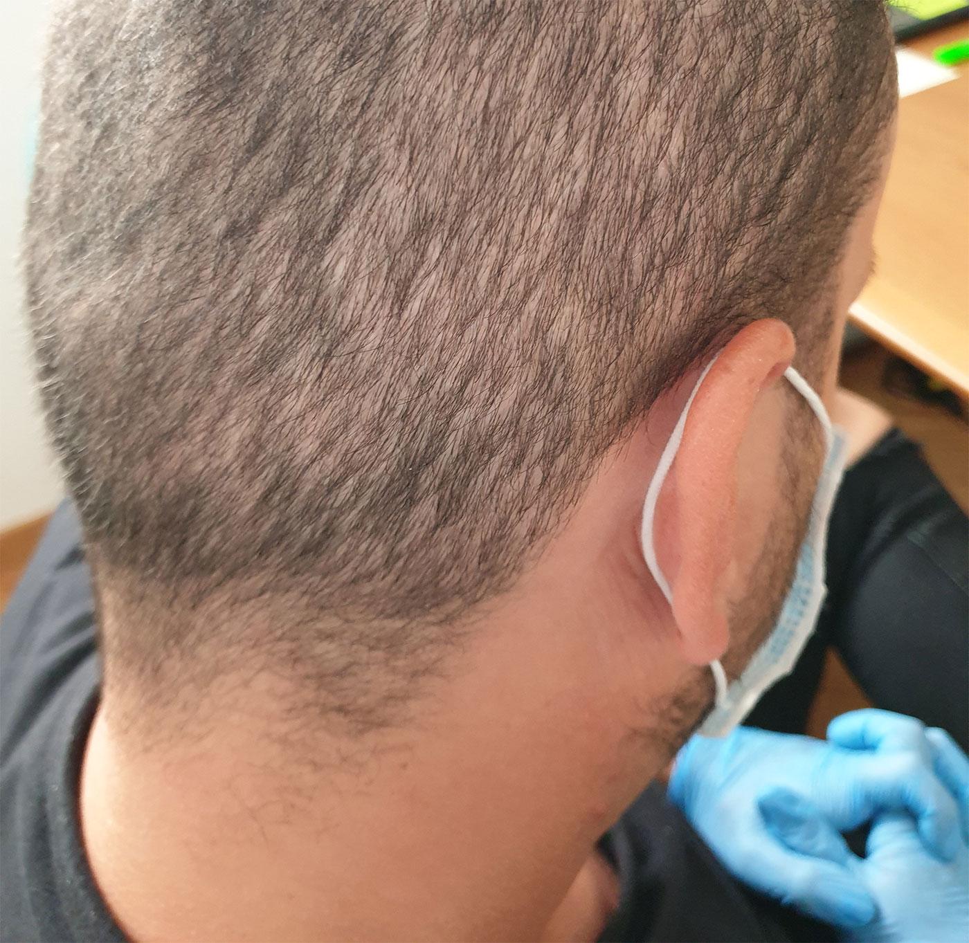 Trapianto di capelli FUE: diradamento area donatrice