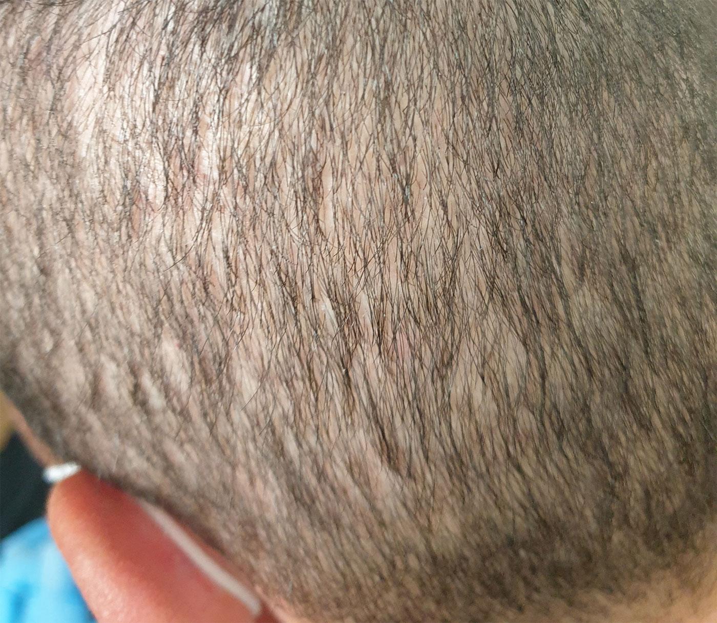 Trapianto di capelli FUE: dettaglio diradamento area donatrice