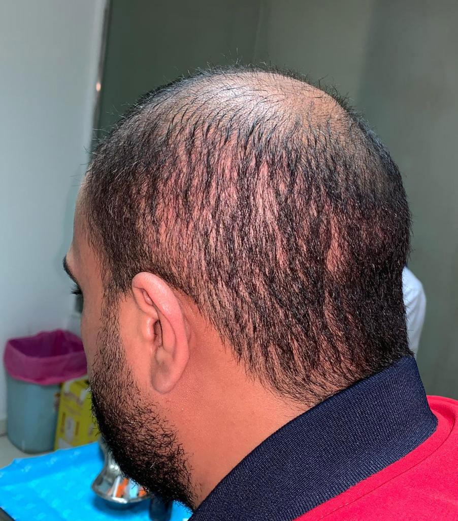 Diradamento area donatrice e scarso attecchimento capelli trapiantati con tecnica FUE