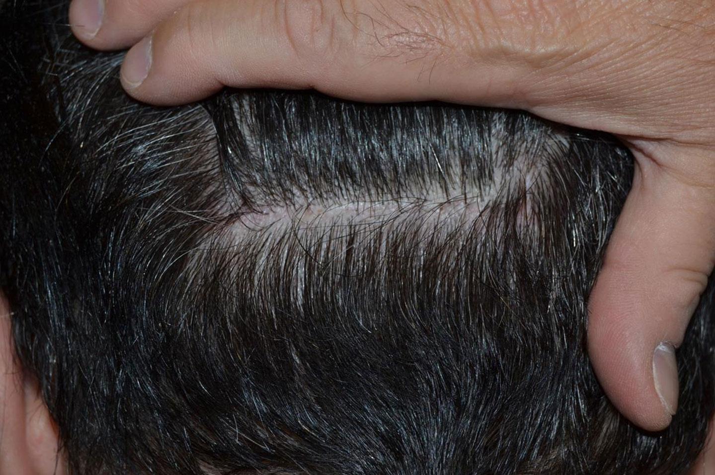 Trapianto di capelli FUT cicatrice con capelli lunghi