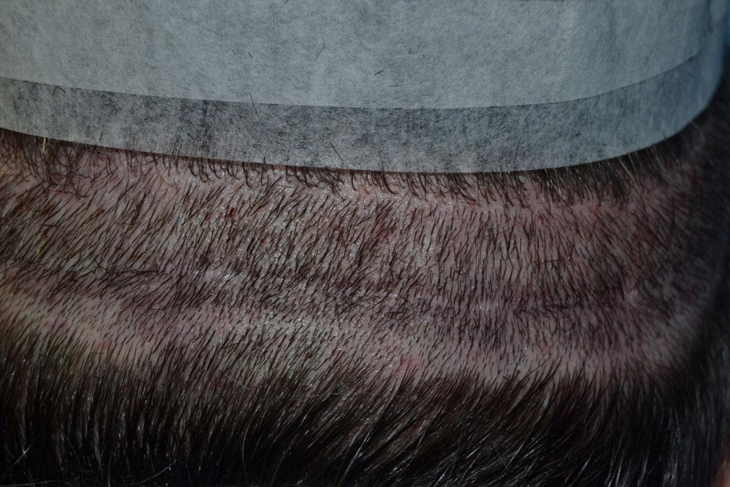 Trapianto di capelli FUT cicatrice con capelli rasati