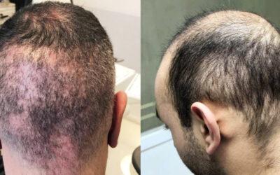 Trapianto di capelli FUE: qualcosa sta finalmente cambiando