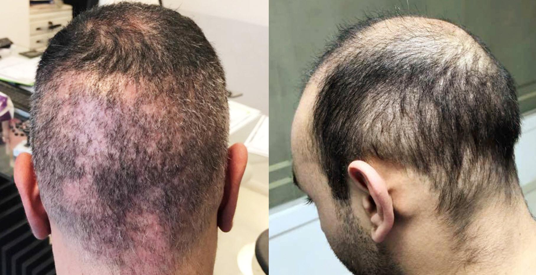 Trapianto di capelli Turchia: cicatrici visibili