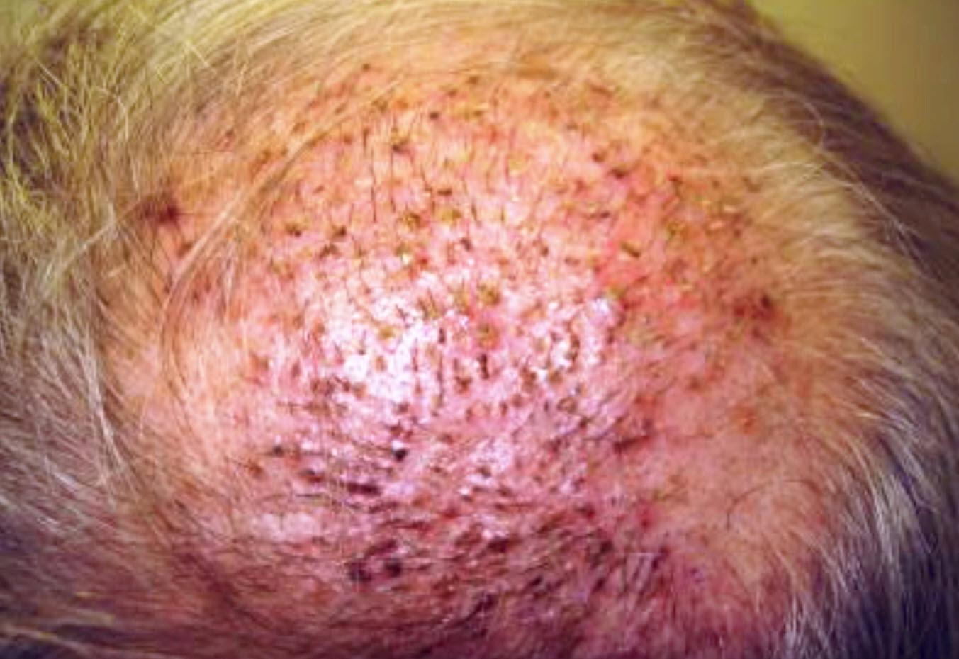 Trapianto capelli Turchia Infezione