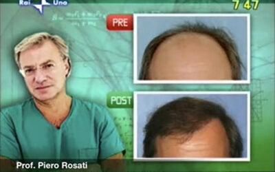 Intervista al prof. Rosati sulla tecnica del trapianto di capelli su Uno Mattina