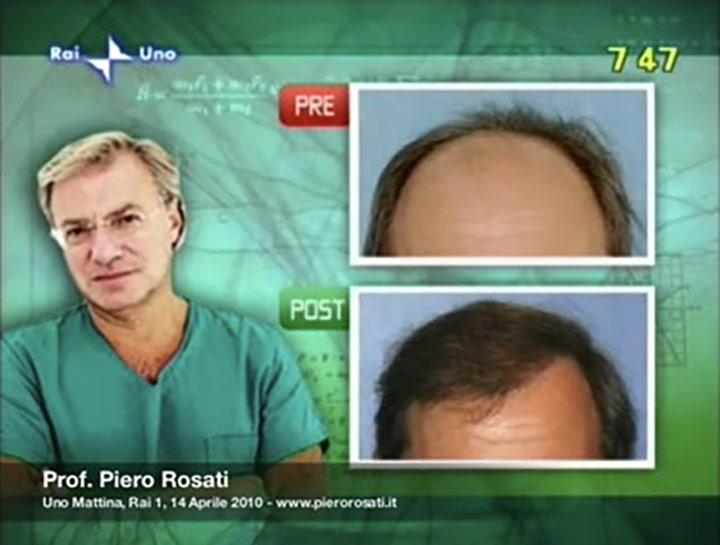 Trapianto di capelli - Intervista Piero Rosati Rai 1