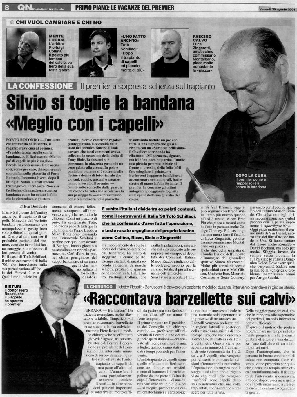 Trapianto di capelli - Silvio si toglie la bandana - Il Resto del Carlino - Articolo