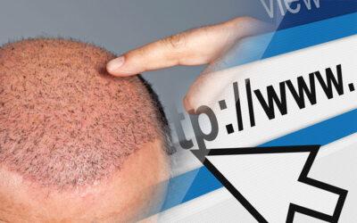 Trapianto di capelli e web